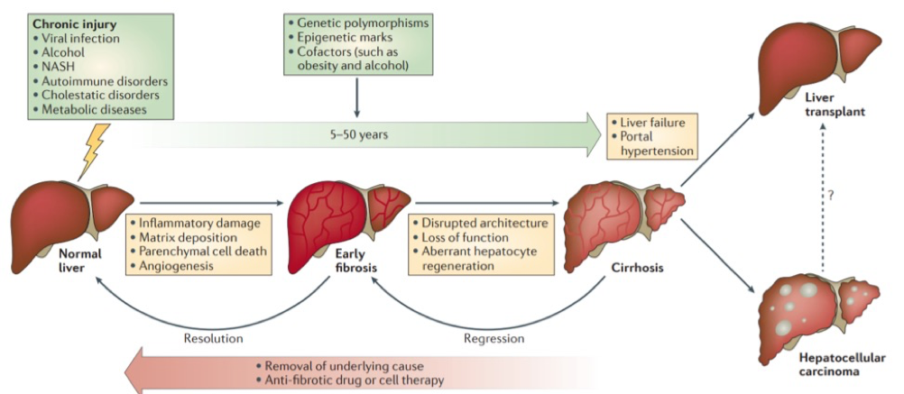 liver_cirrhosis_progression