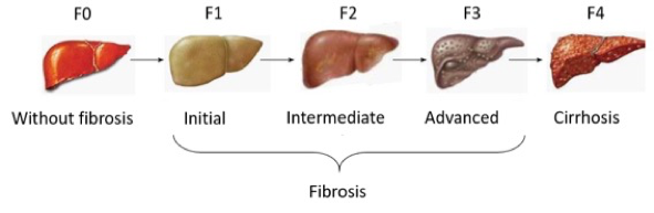 liver_fibrosis_stages